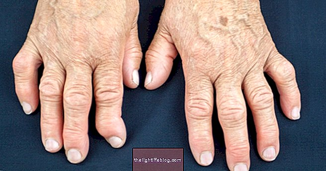 What is arthritis, symptoms, diagnosis and treatment