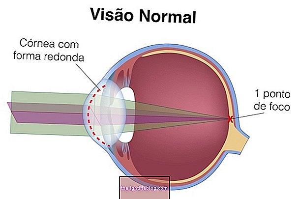 Qu'est-ce que l'astigmatisme, comment identifier et traiter