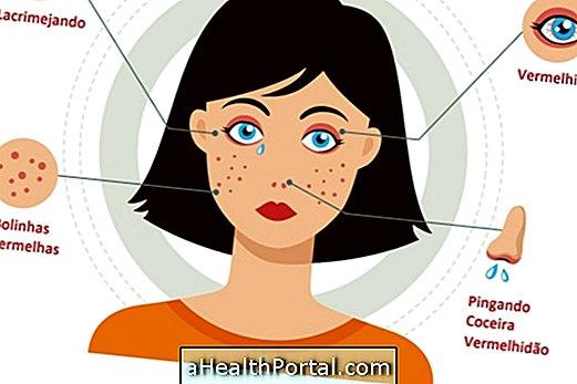Како се борити против алергије прашине