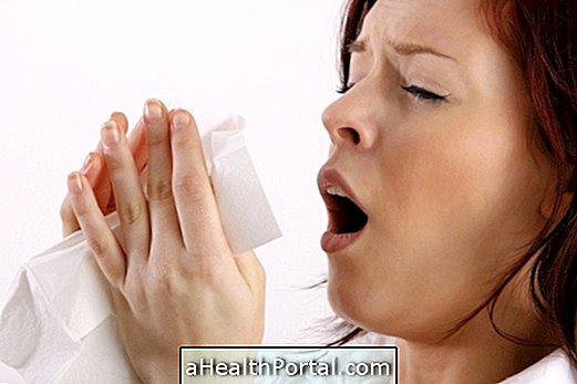 Things to Do to Stop Sneezing
