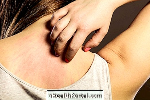 How to Identify and Treat Skin Allergy