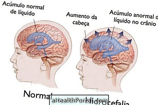 Hydrocéphalie chez l'enfant - Types, symptômes et traitement
