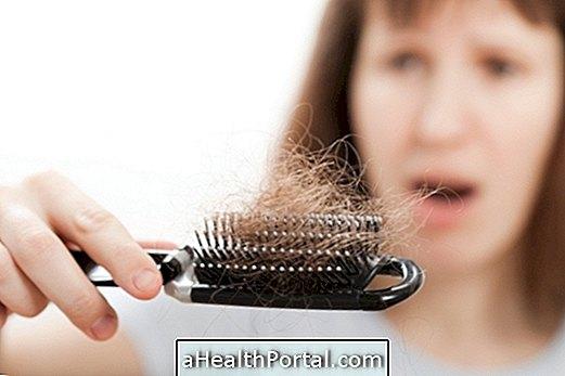 Savoir ce qui peut causer la perte de cheveux