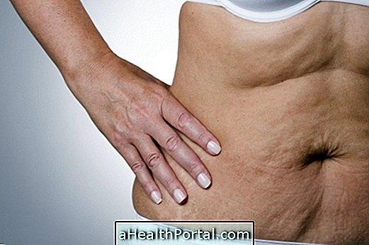 טיפולים הטוב ביותר להילחם רפיון בבטן