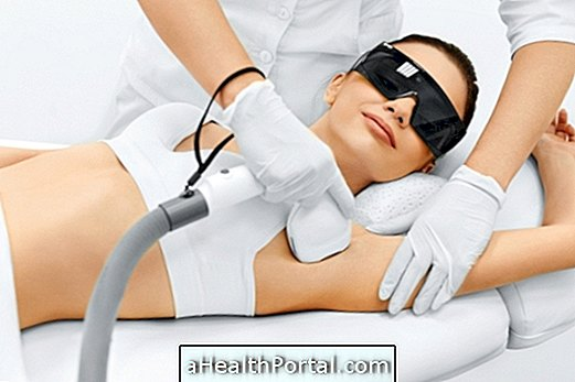 Laser hair removal: How it works, when to do it, who can not and before and after care