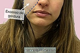 Wie Chirurgie funktioniert, um das Gesicht zu stimmen