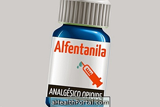 Traitement analgésique alfentanila opioïde