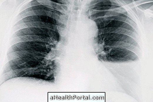 What is Chylothorax and what are the main causes