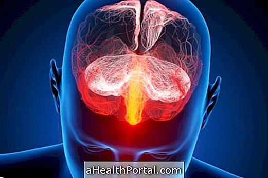 Шта је и како се лијечи Вирусни енцефалитис