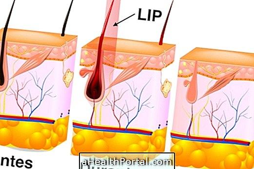 Pulsed Light elimină pielea și părul nedorit