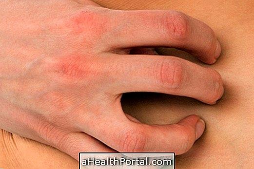 Dermatofitīze: simptomi un ārstēšana