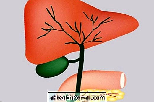 원발성 담즙 장염 : 증상, 진단 및 치료