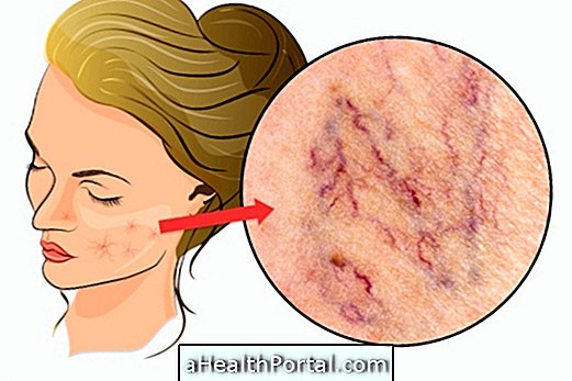 What is and how to treat telangiectasia on the face
