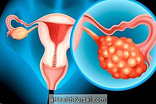 Πώς να προσδιορίσετε και να θεραπεύσετε το τερατόμα στις ωοθήκες