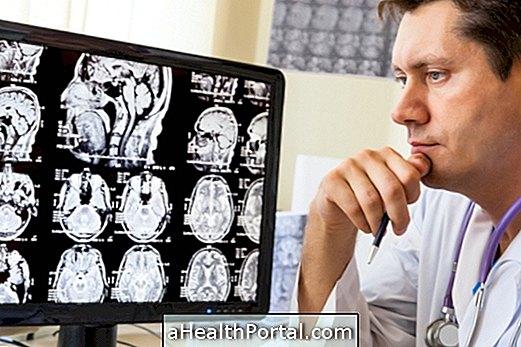 כיצד להפוך את הדיאטה קטוגני עבור אפילפסיה