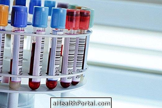 Testovi koji potvrđuju anemiju