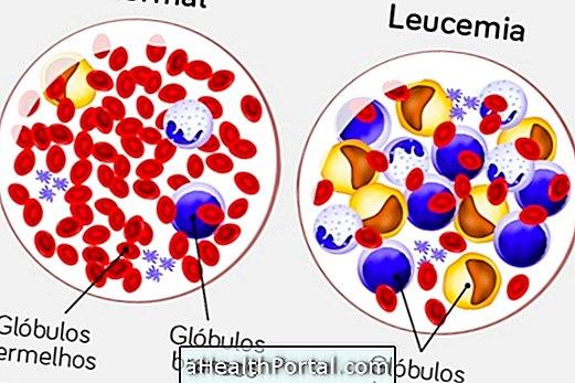 Leikēmija Limfole: tas ir, galvenie simptomi un kā ārstēt