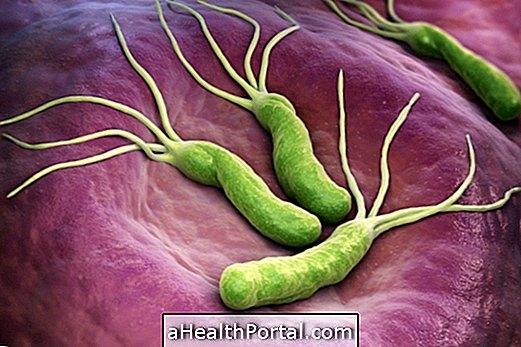 Како доћи и како се лијечи Х. пилори бактерије