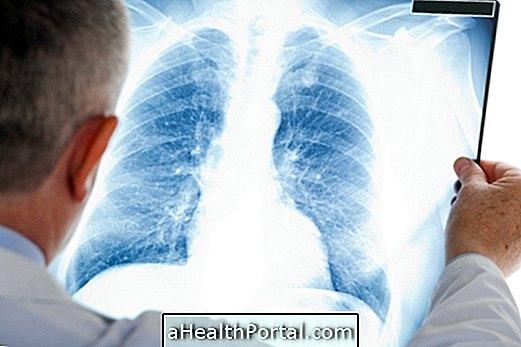 סרקואידוזיס: מה זה, תסמינים וכיצד לטפל בה