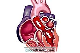 Ποια είναι τα συμπτώματα της διασταλμένης καρδιάς