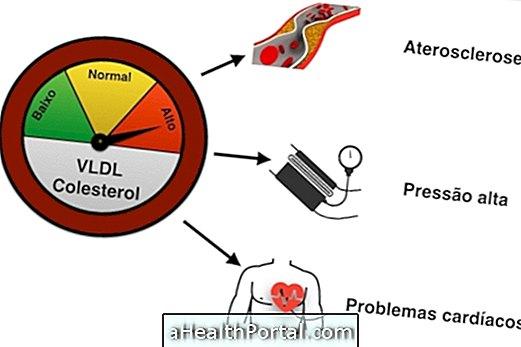 Kõrge VLDL-i kolesterool võib põhjustada ateroskleroosi