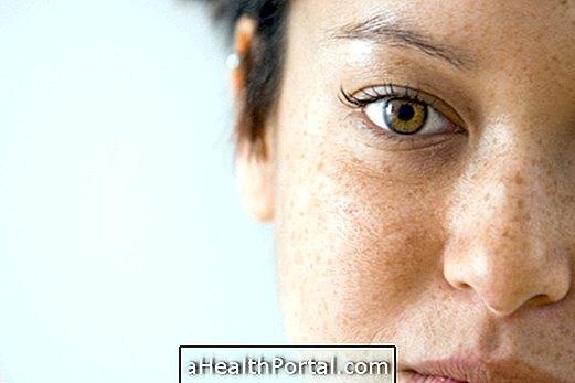Freckles: वे क्या हैं और कैसे आकर्षित करने के लिए