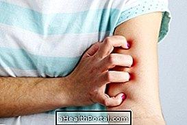הסימפטומים העיקריים של דרמוגרפיה וכיצד לטפל