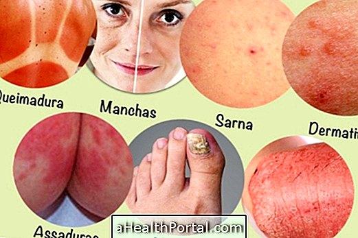 Tepalai 7 labiausiai paplitusių odos problemų