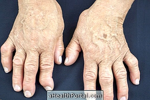 Psoriatic Arthritis: What It Is, Symptoms and Treatment
