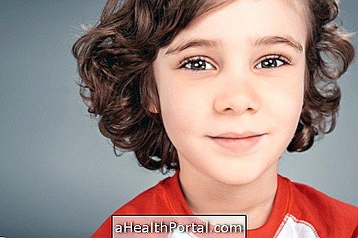 Klinefelteri sündroomi karakteristikud