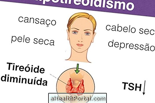 How to Identify and Treat Hypothyroidism