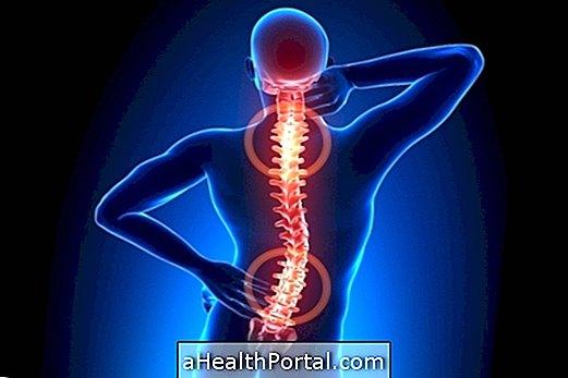 תרופות לטיפול בכאב בעמוד השדרה