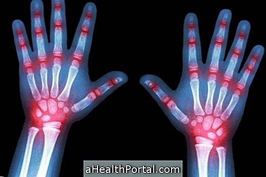 Reaktīvais artrīts: tas ir, simptomi un cēloņi