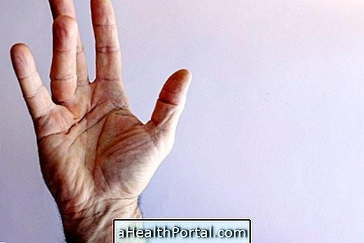 Kā noteikt un ārstēt Dupuytren kontrakciju