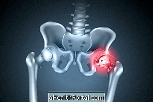 Artritis u hip: simptomi, testovi, uzroci i liječenje