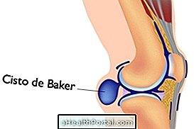 Карок иза колена може бити Бакерова циста