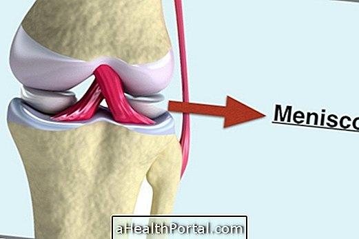 Како идентификовати и лијечити повреде у менискусу