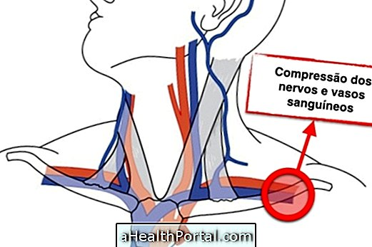 थोरैसिक रेज सिंड्रोम: लक्षण और उपचार