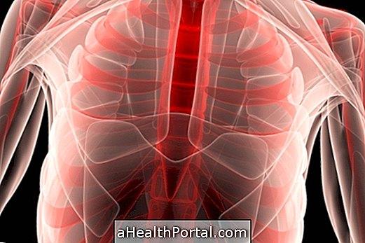 बोर्नहोम रोग की पहचान कैसे करें और उसका इलाज कैसे करें
