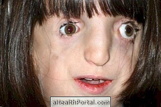 טריישר קולינס: התסמונת שעושה את הפנים מעוותים