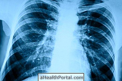 Kaip pneumonija yra užkrečiama ir kaip ją išvengti