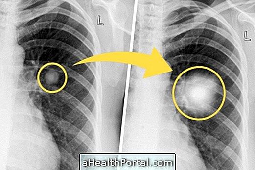 Kokio tipo vienkartinės plaučių gali būti vėžys?