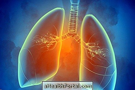 Hva er lungescintigrafi og hva er det for?
