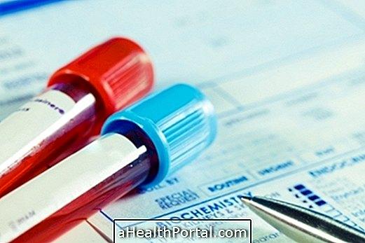 Apprenez ce que signifie une hormone ACTH élevée ou faible