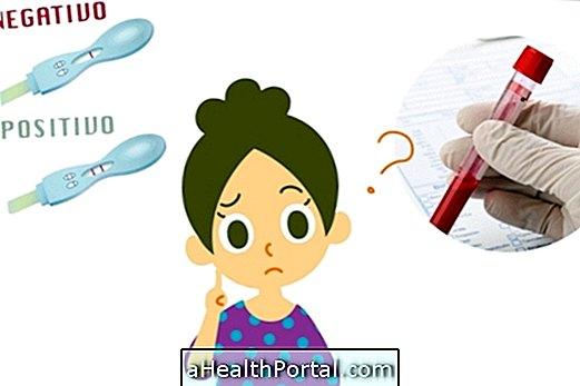 Test de grossesse - Différences entre le test en pharmacie et le test sanguin