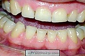 Шта да урадите како бисте контролисали зубе у току ноћи