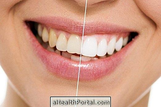 השיניים הטובות ביותר הלבנת טיפולים