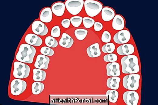 What is hyperdontia and how is the treatment done?
