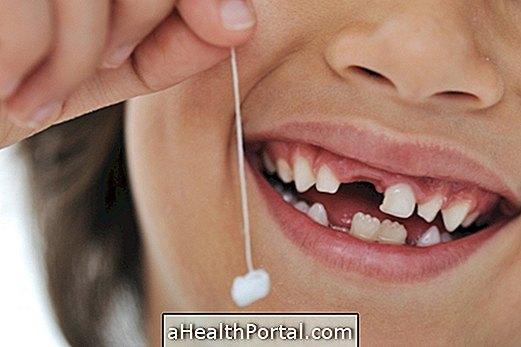 zubné lekárstvo - Čo robiť, keď mliečny zub padá a druhý sa narodí