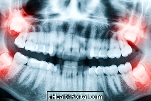 Wisdom tooth: When to take and How is Recovery